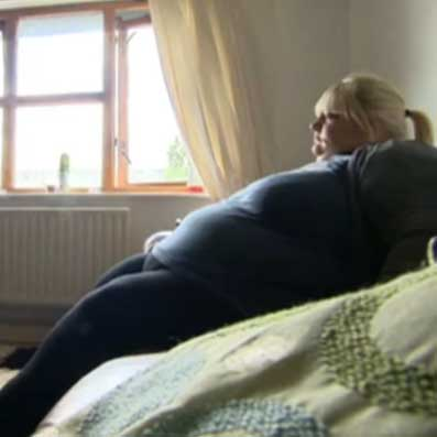Super Obesity Costing NHS £450m A Year